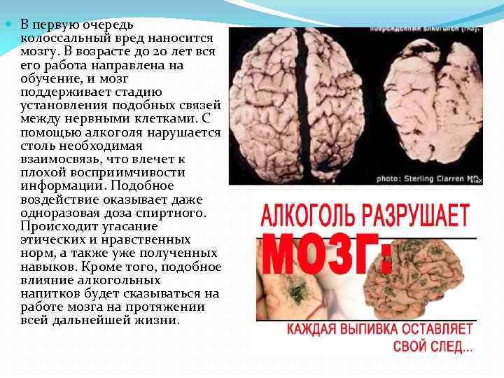 В первую очередь колоссальный вред наносится мозгу. В возрасте до 20 лет вся