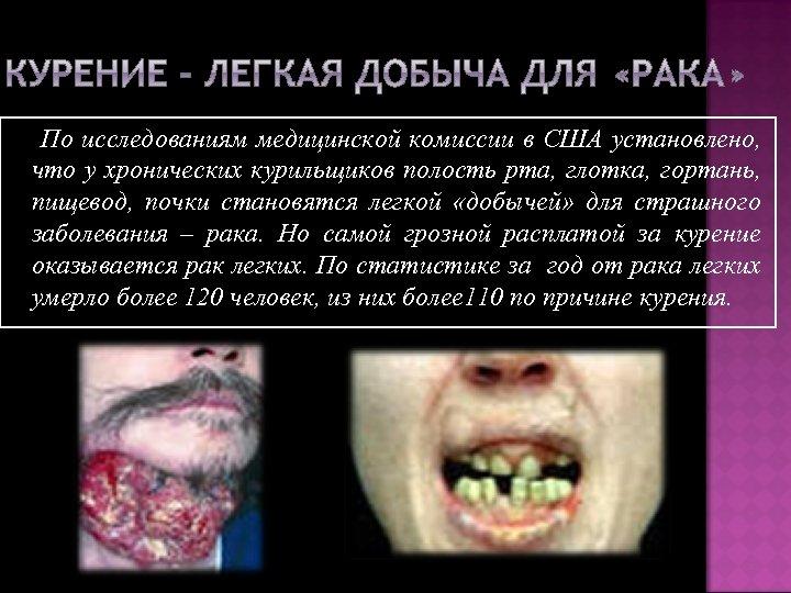 По исследованиям медицинской комиссии в США установлено, что у хронических курильщиков полость рта, глотка,