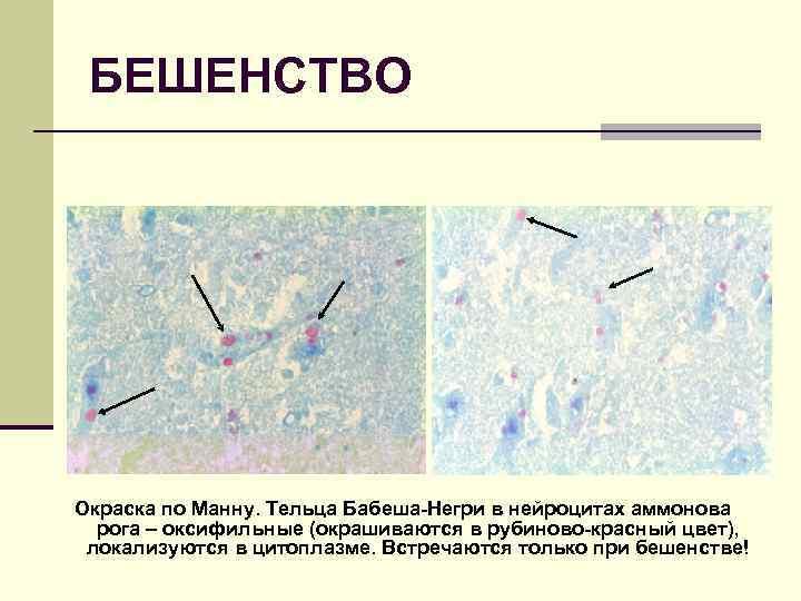 БЕШЕНСТВО Окраска по Манну. Тельца Бабеша-Негри в нейроцитах аммонова рога – оксифильные (окрашиваются в