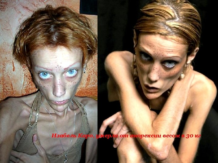 Изабель Каро, умерла от анорексии весом в 30 кг