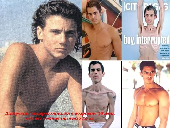 Джереми Глицер скончался в возрасте 38 лет, его вес составлял всего 30 кг