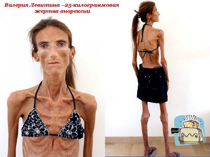 Валерия Левитина – 25 -килограммовая жертва анорексии