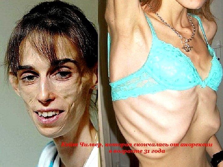Кейт Чилвер, которая скончалась от анорексии в возрасте 31 года