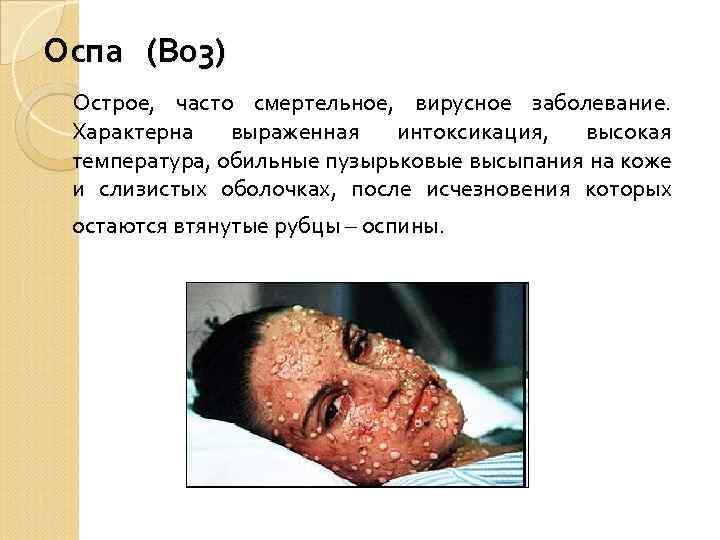 Оспа (В 03) Острое, часто смертельное, вирусное заболевание. Характерна выраженная интоксикация, высокая температура, обильные