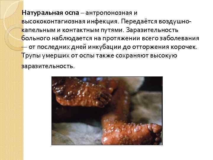 Натуральная оспа – антропонозная и высококонтагиозная инфекция. Передаётся воздушнокапельным и контактным путями. Заразительность больного