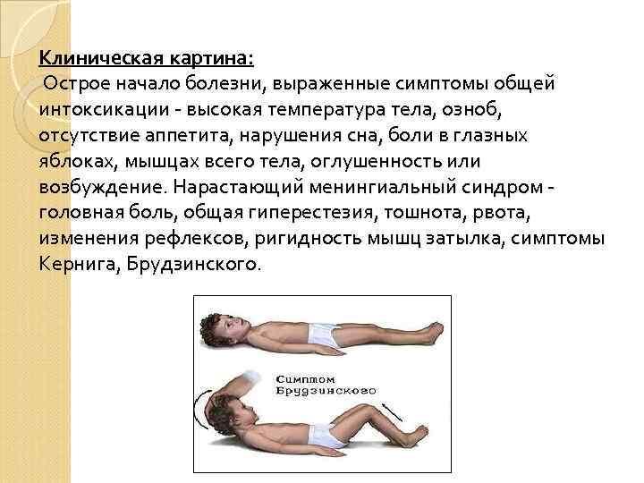Клиническая картина: Острое начало болезни, выраженные симптомы общей интоксикации - высокая температура тела, озноб,