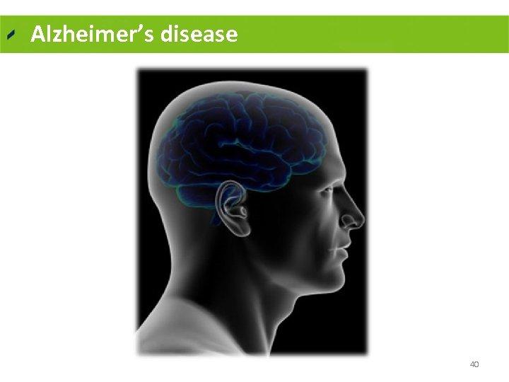 Alzheimer's disease 40