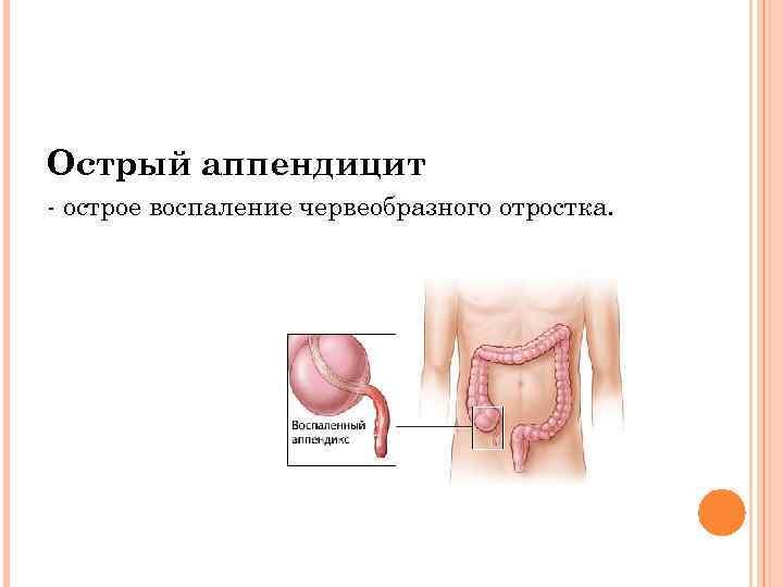 Как начинается аппендицит у беременных 84
