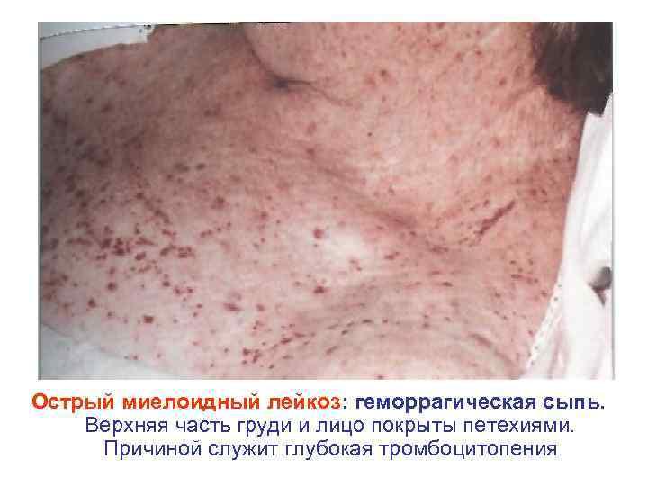 Острый миелоидный лейкоз: геморрагическая сыпь. Верхняя часть груди и лицо покрыты петехиями. Причиной служит