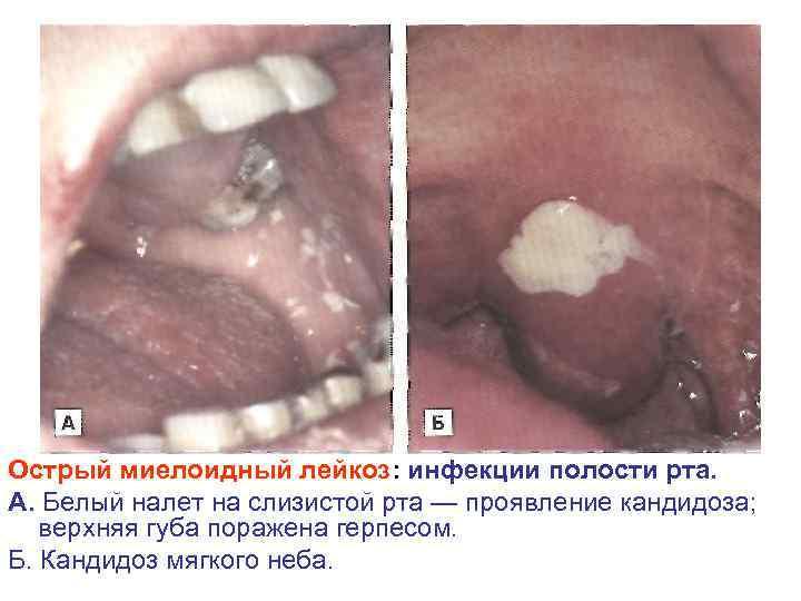 Острый миелоидный лейкоз: инфекции полости рта. А. Белый налет на слизистой рта — проявление