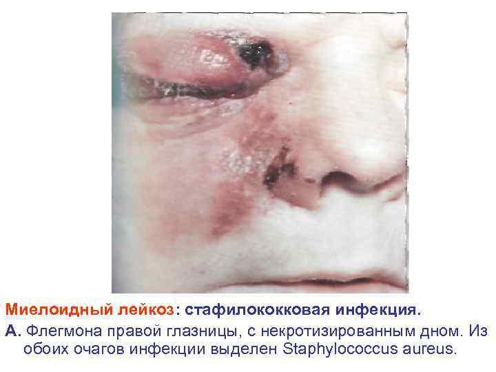 Миелоидный лейкоз: стафилококковая инфекция. А. Флегмона правой глазницы, с некротизированным дном. Из обоих очагов