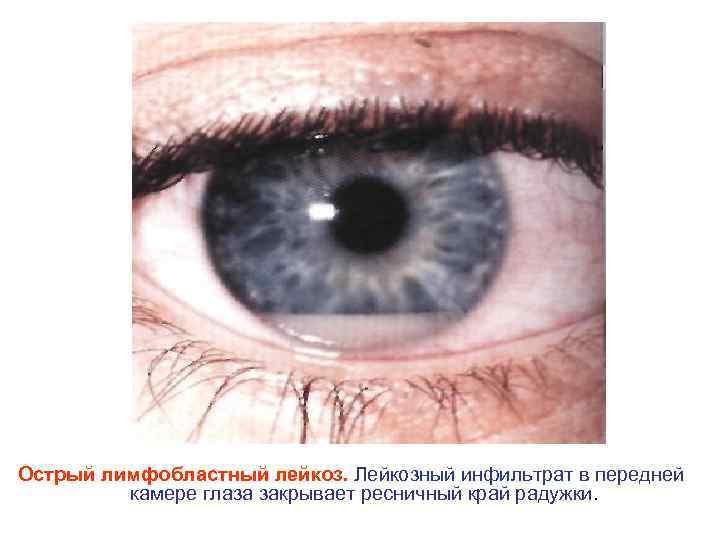 Острый лимфобластный лейкоз. Лейкозный инфильтрат в передней камере глаза закрывает ресничный край радужки.