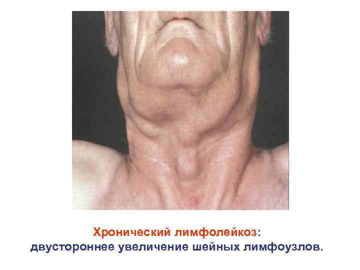 Хронический лимфолейкоз: двустороннее увеличение шейных лимфоузлов.