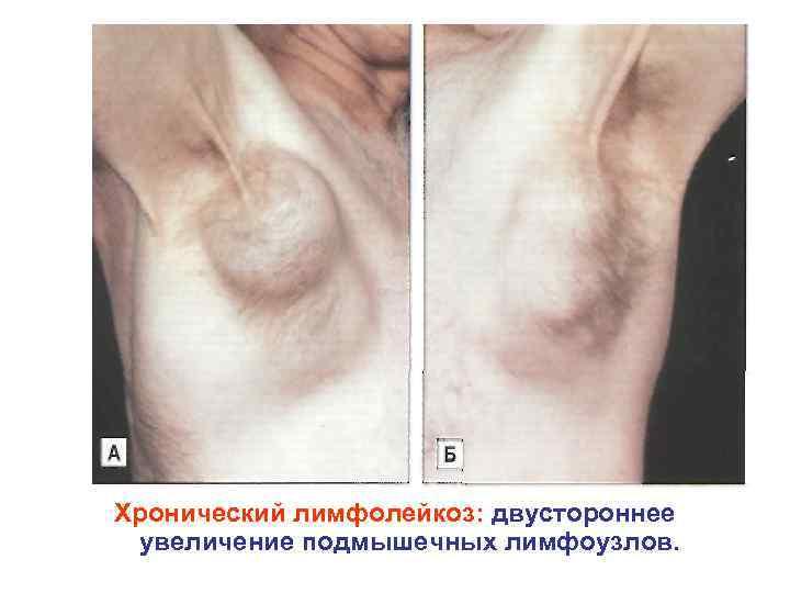 Хронический лимфолейкоз: двустороннее увеличение подмышечных лимфоузлов.