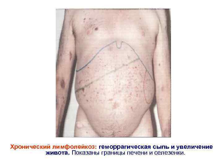 Хронический лимфолейкоз: геморрагическая сыпь и увеличение живота. Показаны границы печени и селезенки.
