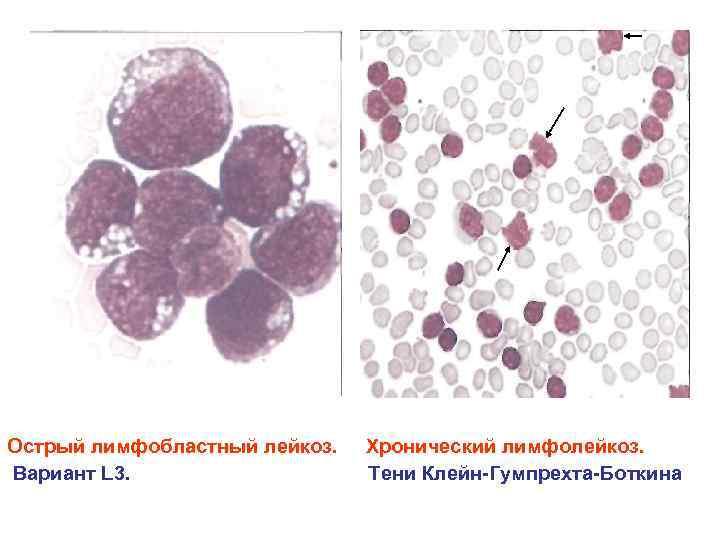Острый лимфобластный лейкоз. Вариант L 3. Хронический лимфолейкоз. Тени Клейн Гумпрехта Боткина