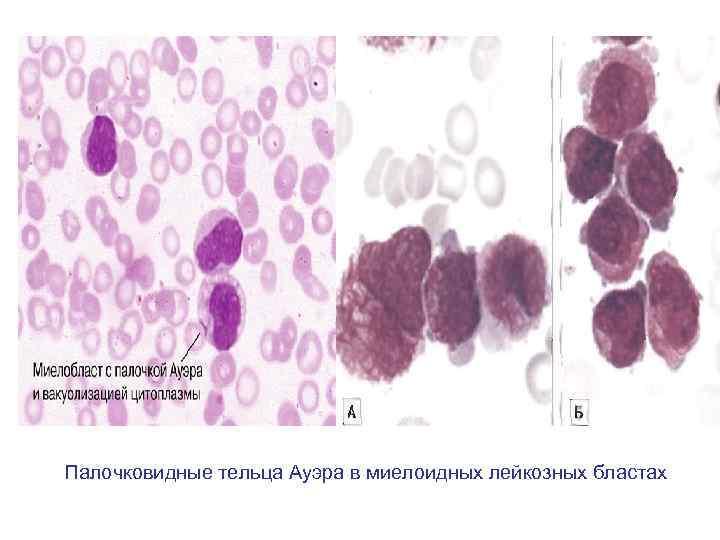 Палочковидные тельца Ауэра в миелоидных лейкозных бластах