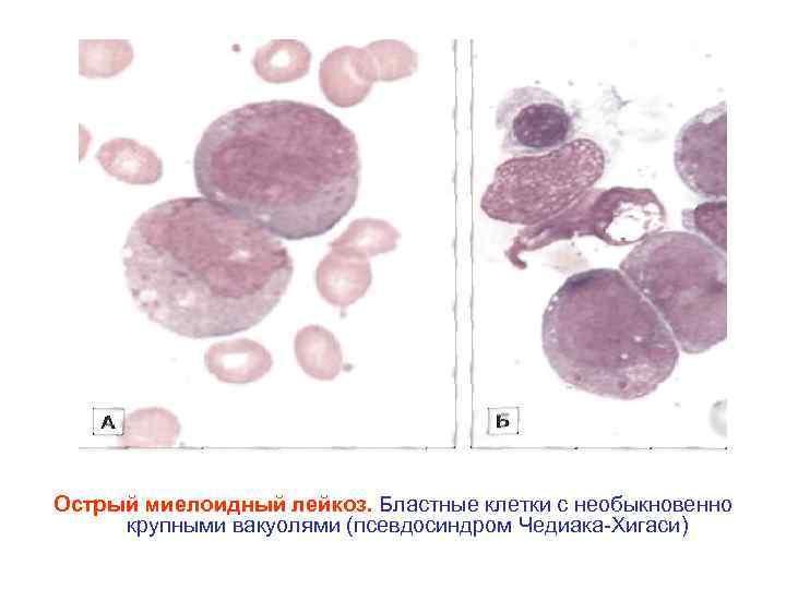 Острый миелоидный лейкоз. Бластные клетки с необыкновенно крупными вакуолями (псевдосиндром Чедиака Хигаси)