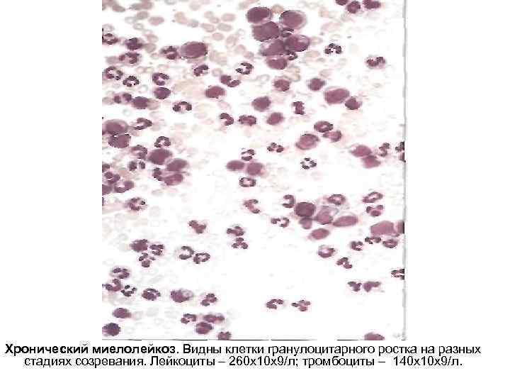 Хронический миелолейкоз. Видны клетки гранулоцитарного ростка на разных стадиях созревания. Лейкоциты – 260 х10