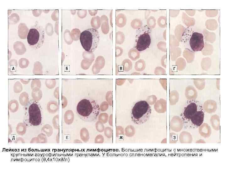 Лейкоз из больших гранулярных лимфоцитов. Большие лимфоциты с множественными крупными азурофильными гранулами. У больного