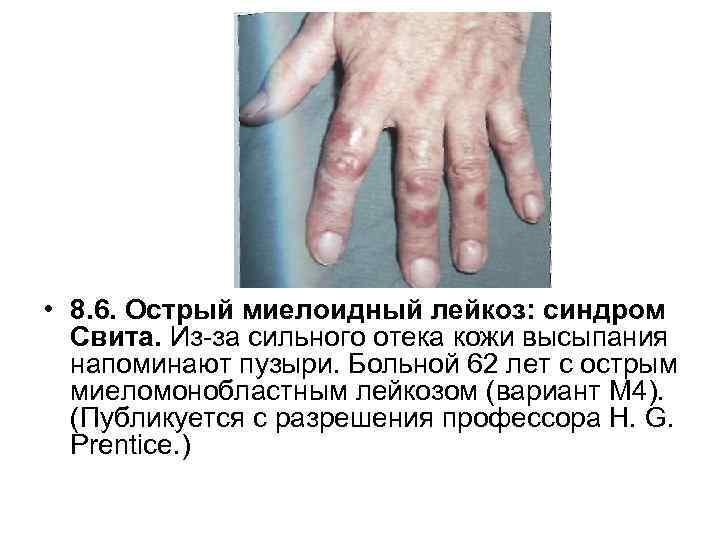 • 8. 6. Острый миелоидный лейкоз: синдром Свита. Из за сильного отека кожи