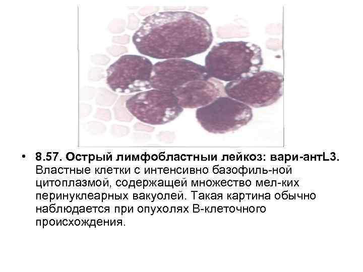 • 8. 57. Острый лимфобластныи лейкоз: вари ант. L 3. Властные клетки с