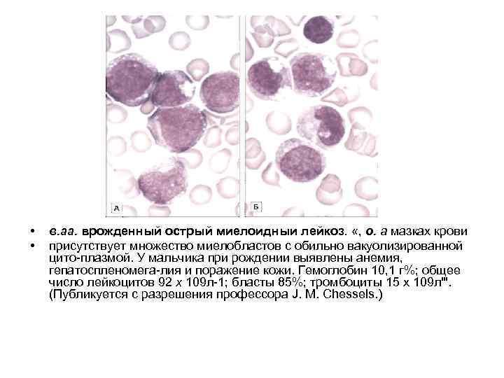 • • в. аа. врожденный острый миелоидныи лейкоз. «, о. а мазках крови