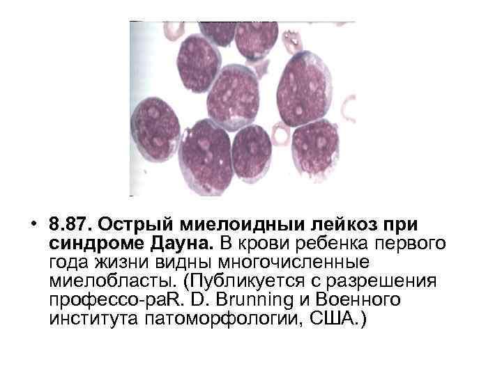 • 8. 87. Острый миелоидныи лейкоз при синдроме Дауна. В крови ребенка первого