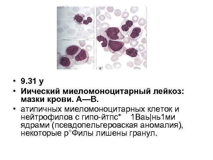 • 9. 31 у • Иический миеломоноцитарный лейкоз: мазки крови. А—В. • атипичных