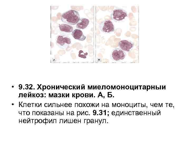 • 9. 32. Хронический миеломоноцитарныи лейкоз: мазки крови. А, Б. • Клетки сильнее
