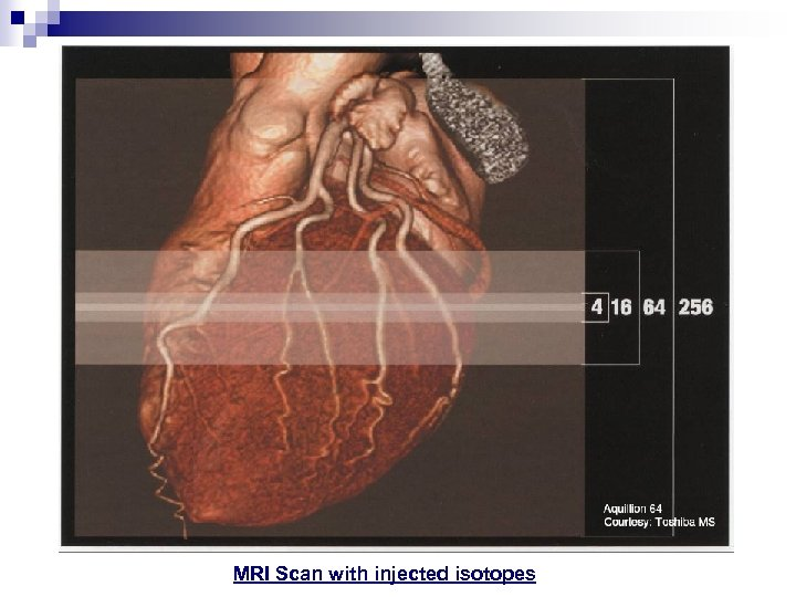 MRI Scan with injected isotopes