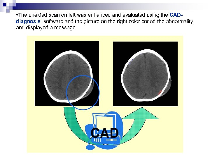 • The unaided scan on left was enhanced and evaluated using the CADdiagnosis