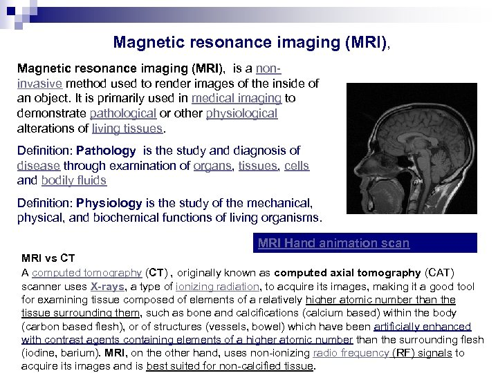 Magnetic resonance imaging (MRI), is a noninvasive method used to render images of the
