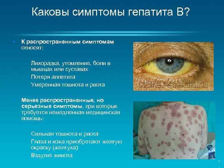 гепатита признаком