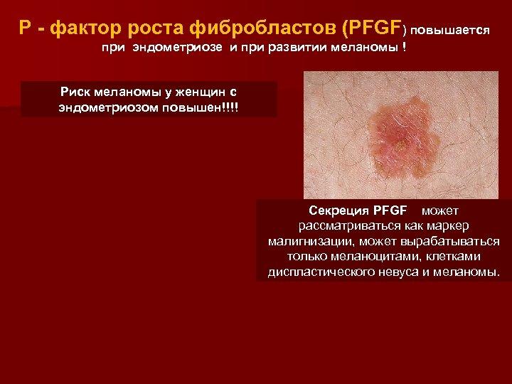 Р - фактор роста фибробластов (PFGF) повышается при эндометриозе и при развитии меланомы !