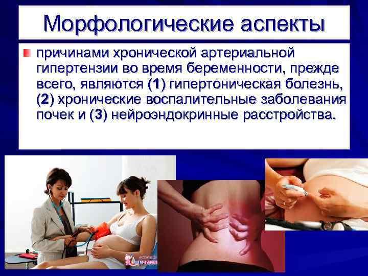 Морфологические аспекты причинами хронической артериальной гипертензии во время беременности, прежде всего, являются (1) гипертоническая