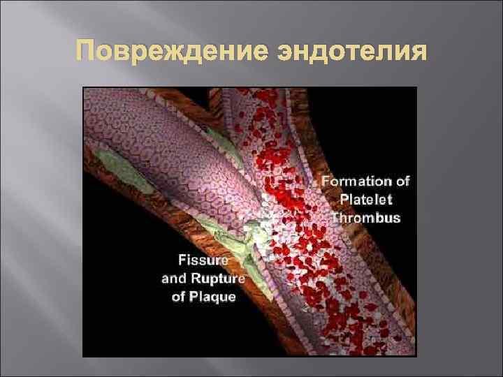 Повреждение эндотелия