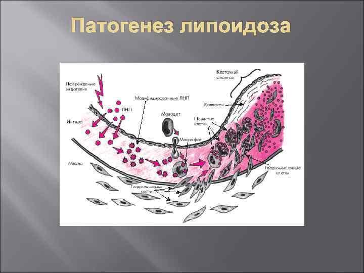 Патогенез липоидоза