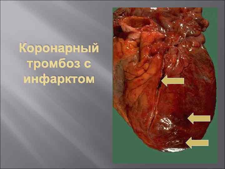 Коронарный тромбоз с инфарктом
