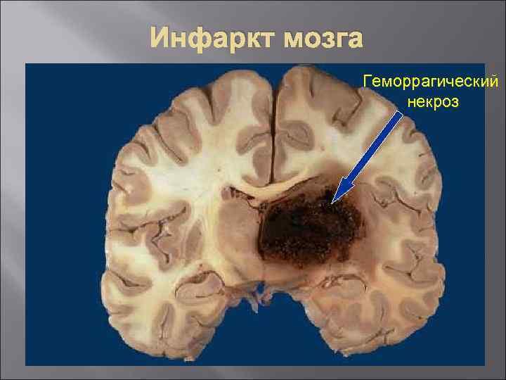 Инфаркт мозга Геморрагический некроз