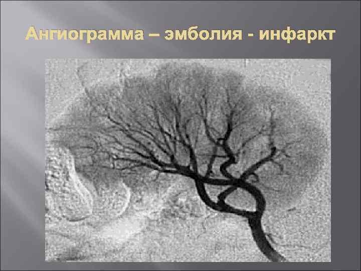 Ангиограмма – эмболия - инфаркт