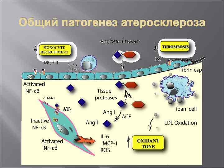 Общий патогенез атеросклероза