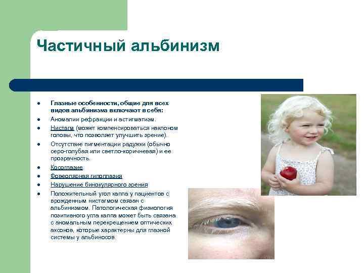 Частичный альбинизм l l l l Глазные особенности, общие для всех видов альбинизма включают