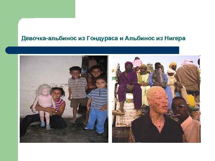 Девочка-альбинос из Гондураса и Альбинос из Нигера