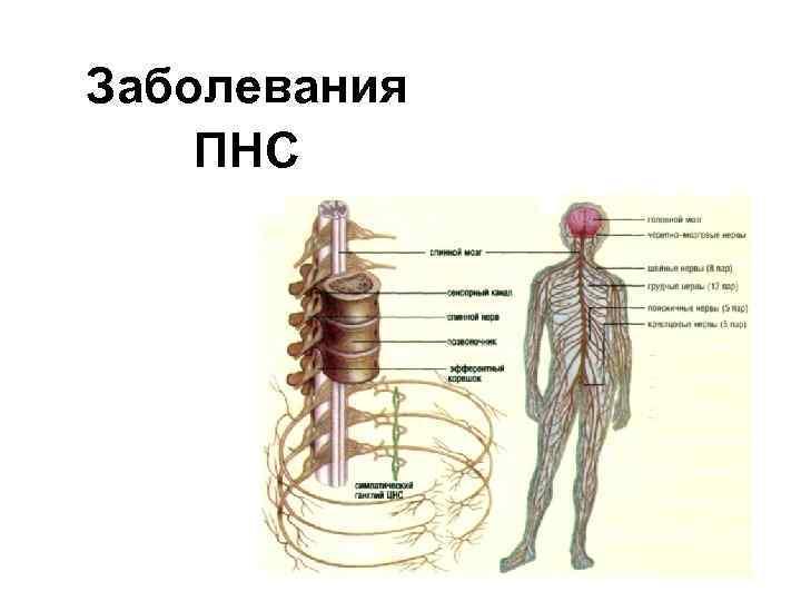 Заболевания ПНС 1