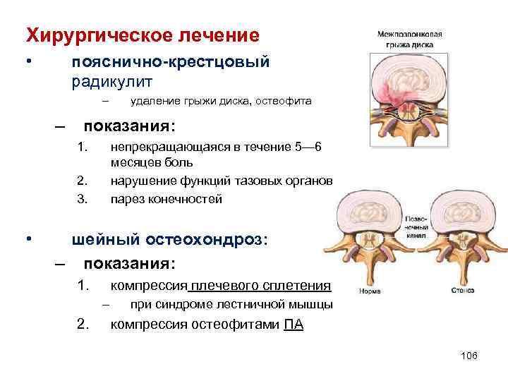 Хирургическое лечение • пояснично-крестцовый радикулит – – показания: 1. непрекращающаяся в течение 5— 6