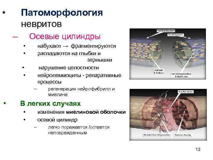 • Патоморфология невритов – Осевые цилиндры • • набухают → фрагментируются распадаются на