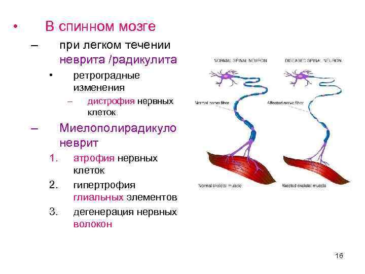 • В спинном мозге – при легком течении неврита /радикулита • ретроградные изменения