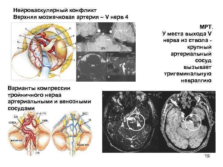 Нейроваскулярный конфликт Верхняя мозжечковая артерия – V нерв 4 МРТ. У места выхода V