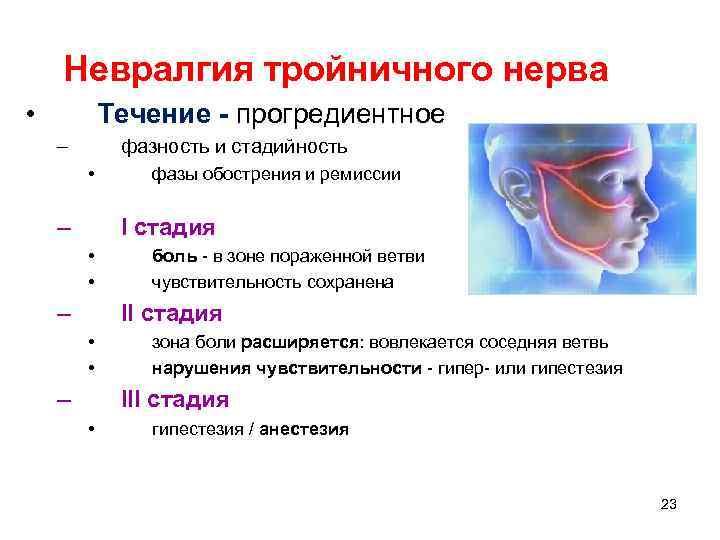 Невралгия тройничного нерва • Течение - прогредиентное – фазность и стадийность • – фазы
